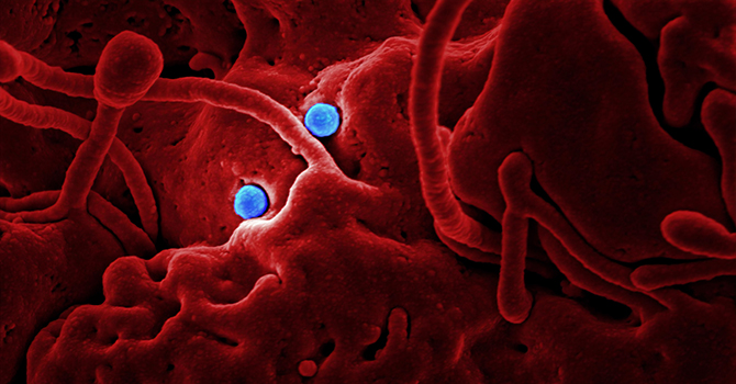Colorized view of coronavirus.